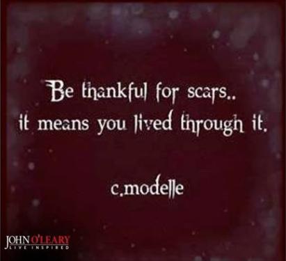 thankful scars